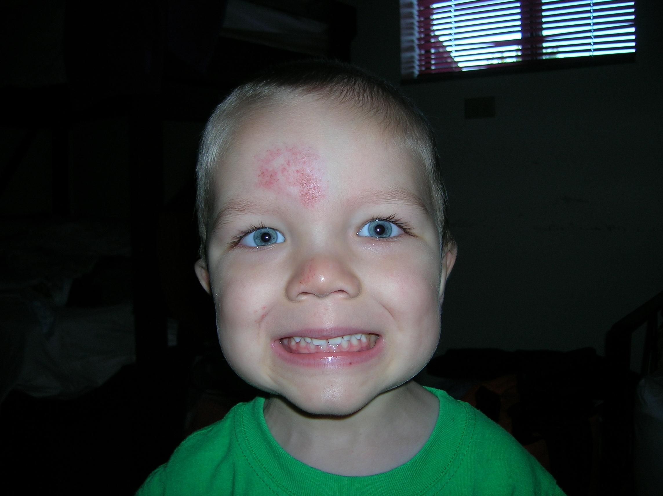 Cade's head wound